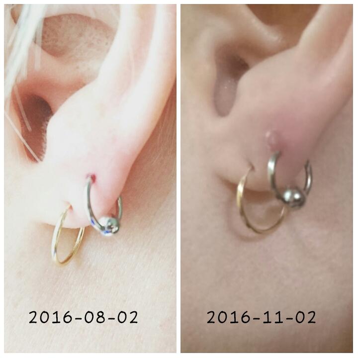 infekterad piercing örat