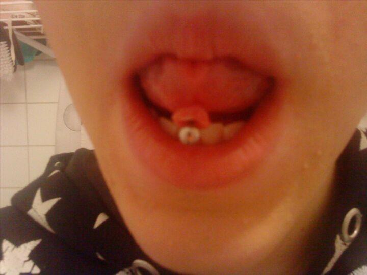problem med tungan