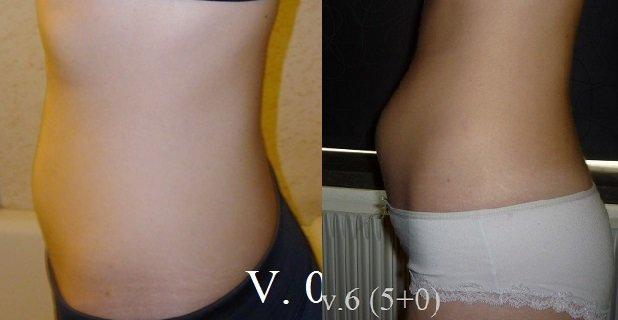 svullen mage gravid vecka 8